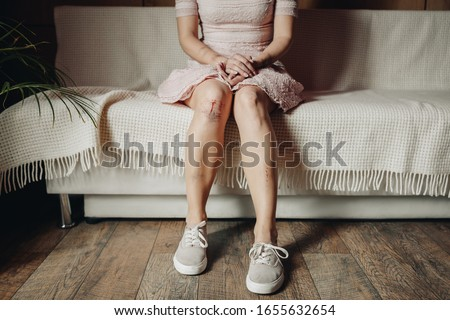 Cropped view of woman with bruises and wound sitting on sofa at home