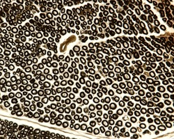 Cross section of a myelinated nerve stained with osmium tetroxyde to show the myelin sheath of nerve fibers. Light microscope micrograph.