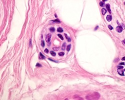Cross section of intradermal portion of excretory duct of an eccrine sweat gland, lined by a stratified epithelium formed by two layers of cuboidal cells.