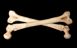Crossbones made of two human bones on a black background