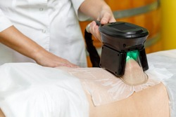 Cryolipolysis fat freezing treatment. Weight loss and slimming procedure in beauty salon