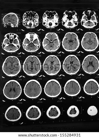 CT brain of a 48 years old man with head injury and confusion: demonstrated depressed skull fracture at left temporal bone, and dilated perivascular or lacunar infarction at right frontal lobe.