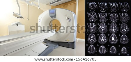 CT scan an advance technology for medical diagnosis