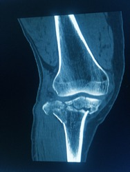 CT Scan knee of the patient periarticular injuries fracture of the proximal tibia frequently associated with soft tissue injuries.Medical concept.