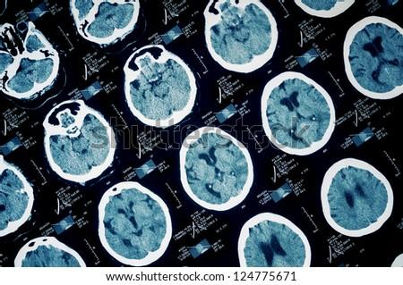 CT scan of human head-brain area