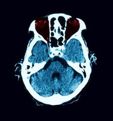 CT scan of  maxillary sinusitis