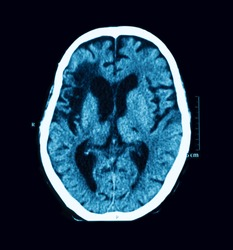 CT scan of the brain, case of old CVA (Cerebrovascular Accident), Atrial Fibrillation (AF) and Dilated cardiomyopathy (DCM)