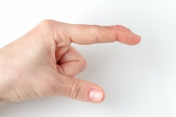 cut index finger with a extensor tendon injury, mallet finger, tip of the finger bending downwards while the rest of the finger stay straight, deformity in the last phalangeal bone, pointing direction