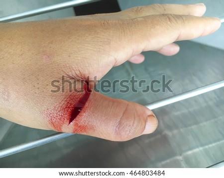 how to stop bleeding cut finger