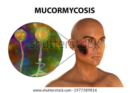 Cutaneous mucormycosis, a disease caused by fungi Mucor, also known as black fungus, 3D illustration showing skin leasion and closep view of Mucor fungus. Covid-19 complication Сток-фото ©