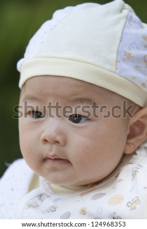 Cute baby with hat has scurf on face