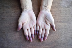 Cyanotic hands or peripheral cyanosis or blue hands at Southeast Asian, Chinese old woman with congenital heart disease.