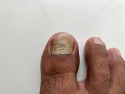 Danaged nail by infection and bleeding from within