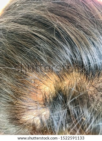 Dandruff on the head of asian men. The concept of scalp health. Hair that has dandruff on the head. #1522591133