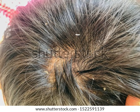 Dandruff on the head of asian men. The concept of scalp health. Hair that has dandruff on the head. #1522591139