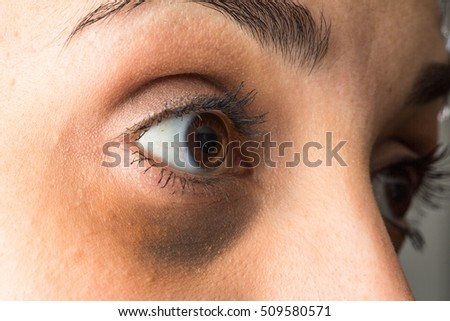 Dark circles eyes #509580571