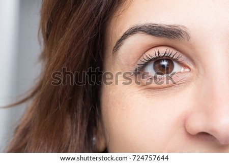 Dark circles under eye of young beautiful woman #724757644