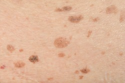 Dark spots and skin problems and itching Skin disease  freckles on the skin