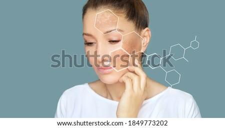 Dark spots, freckles,hyperpigmentation(melasma or chloasma) Stockfoto ©
