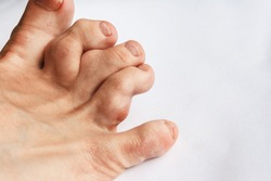 deformed toes after multiple fractures. swelling of the joints of the toes. Painful gout inflammation on toe joints, selective focus. gouty toes. toes affected by Gout
