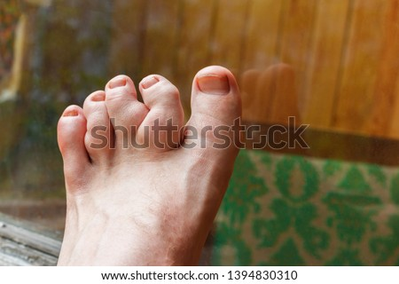 deformity of toes because of dyschondroplasia, which causingdistortedgrowthinlength, tumors of boneandpathologicfractures with enchondromas. The picture showed toes deformity of foot.