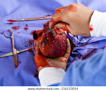 Delicate heart surgery performede by a medical doctor