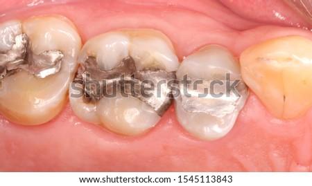 Dental amalgam dental restoration defective filling Stock photo ©