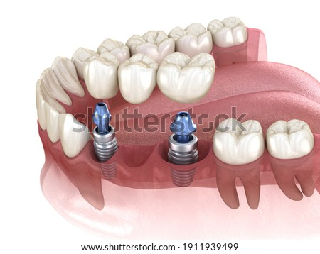 Dental bridge supported by implants. Medically accurate 3D illustration of human teeth and dentures concept Foto d'archivio ©
