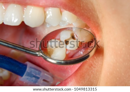 Dental caries. Filling with dental composite photopolymer material using rabbders. The concept of dental treatment in a dental clinic