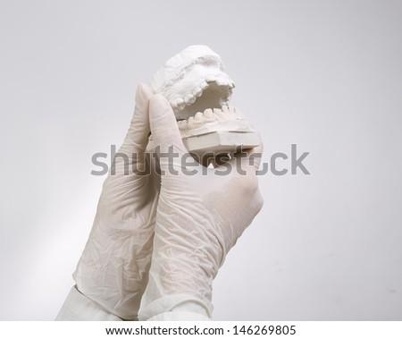 Dental Casting - hands holding dental gypsum models, dental concept - stock photo