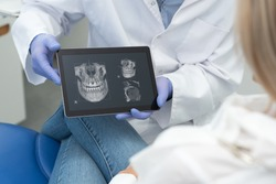 Dental consultation in clinic. Dentist showing teeth x-ray on digital tablet screen. 3D tomography technology.