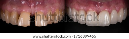 Dental crown and veneer before and after. Smile makeover with dental ceramic veneers treatment, result in clean, well aligned,perfect, youth and white teeth smile.
