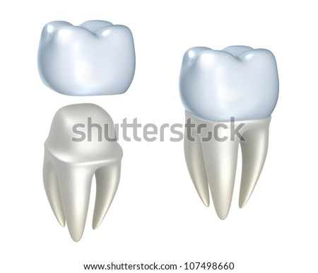 Dental crowns and tooth, isolated on white