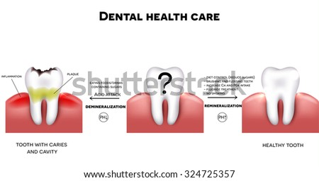 Dental health care, tips how to maintain healthy tooth, diet without sugars, brushing, fluoride treatment etc. And tooth with caries failure to comply with hygiene