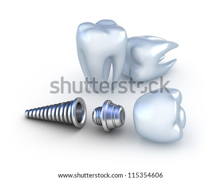 Dental implant and teeth isolated on white