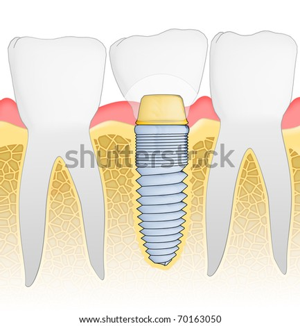 Dental Implant detailed view. Illustration.
