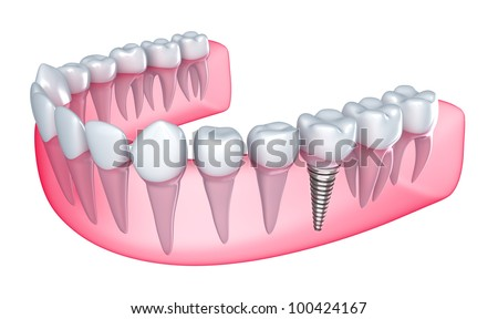 Dental implant in the gum - Isolated on white