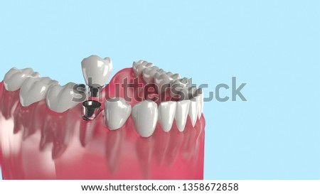 Dental implant procedure into gum with healthy teeth root, artificial tooth root that embed in the bone of the jaw to support artificial crown , isolated with copy space, 3d illustration.
