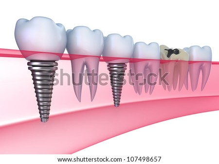 Dental implants in the gum - Isolated on white - stock photo