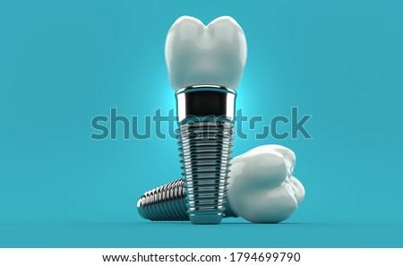 Dental implants on blue background. 3d illustration Foto d'archivio ©