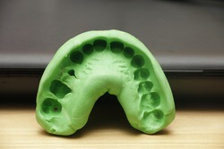 Dental Impression of Maxillary Teeth using elastomer material which consist of base and catalyst.
