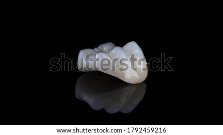 Photo of  dental inlay made of ceramic with morphology on the chewing tooth, filmed on black glass with reflection
