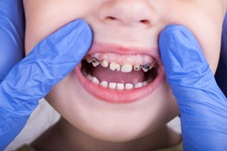 Dental medicine and healthcare - dentist examining little child girl patient open mouth showing caries teeth decay