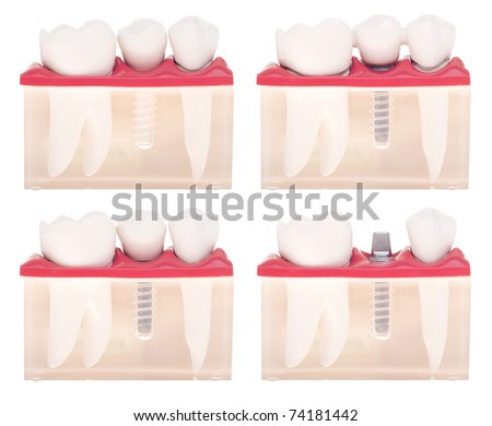 dental model with different types of treatments (implant placement, bonded bridge, crown over implant) isolated on white background