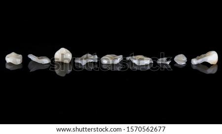 Photo of  dental photo dental ceramic inlays and veneers on black glass