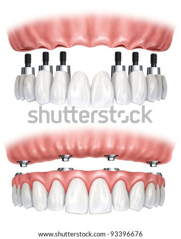 dental prostheses