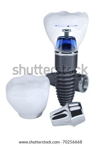 Dental prosthesis construction isolated on white