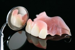Dental prosthetic isolatic - partial denture upper side.