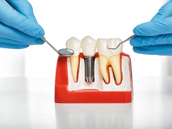 Dental prosthetics concept. Showing the installation of a dental implant on the anatomical model of teeth, close-up