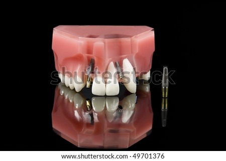 Dental Titanium Implant and Plastic teeth model over black